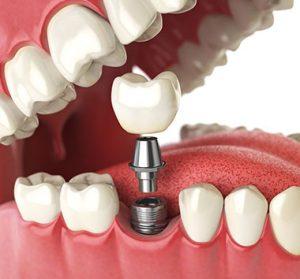 Dental Implants in Telford & Bridgnorth